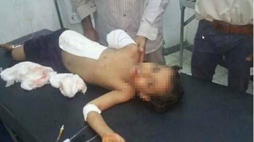 کشته و مجروح شدن بیش از 2000کودک یمنی در تعز
