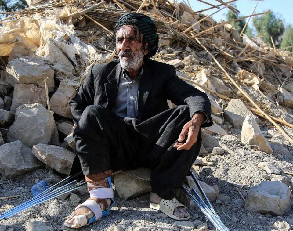A man injured following the 7.2-magnitude earthquake in Iran's Kermanshah province.