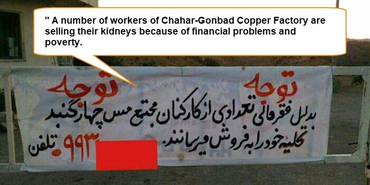 A number of workers of Chahar-Gonbad Copper Factory are selling their kidneys because of financial problems and poverty