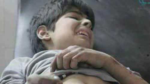 النظام السوري يقصف دوما بالكلور السام