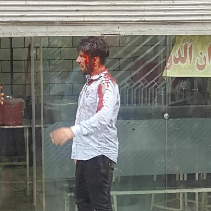 شلیک با تفنگ ساچمهای به تظاهر کنندگان و زخمی شدن جوانان در تهران ۵تیر۹۷