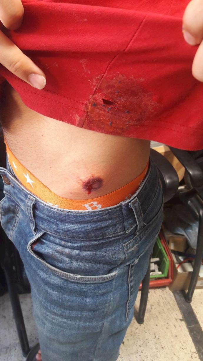 شلیک با تفنگ ساچمهای به تظاهر کنندگان