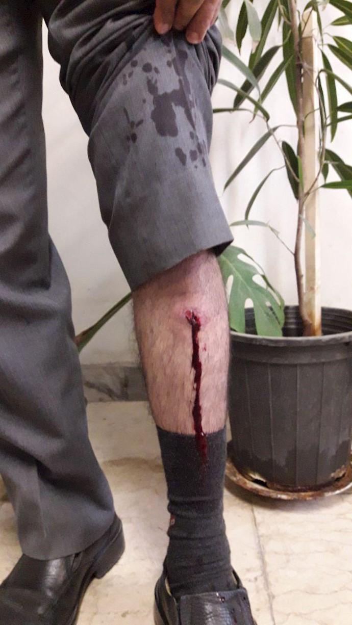 اراک.حمله گاردضدشورش به کارگران آذراب - ۲۸مهر۹۸