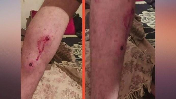 مجروح شدن کولبر کرد بر اثر شلیک پاسداران جنایتکار